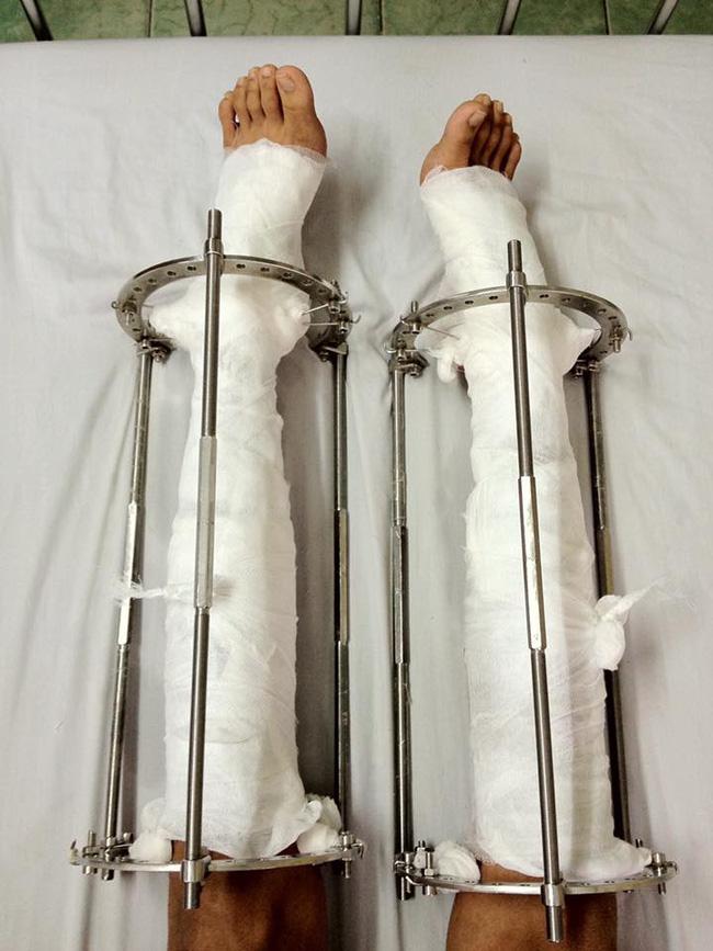 Chàng trai phẫu thuật kéo chân từ 1m67 lên 1m76: Vẫn cõng được người yêu như thường! - Ảnh 6.