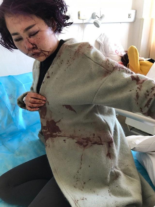 Trung Quốc: Đang ăn BBQ, các cô gái xinh đẹp bất ngờ bị nhóm nam giới say rượu đánh đập, tấn công dã man - Ảnh 6.