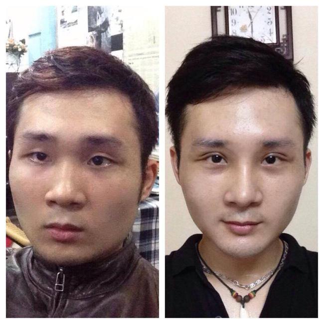 Bất chấp đau đớn, chàng trai Hà Nội chi 750 triệu đồng cắt bỏ xương sườn để có vòng eo bé xíu - Ảnh 9.