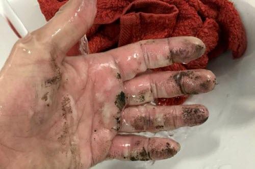 Vết bỏng ở tay của nạn nhân.