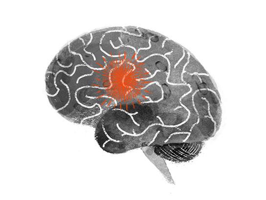 Đừng coi thường những dấu hiệu sau vì nó có thể cảnh báo cơn đột quỵ sắp xảy ra - Ảnh 1.