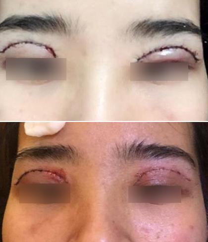 Là tiểu phẫu nhưng cắt mí hay bóc mỡ bọng mắt cũng có thể gây ra những hậu quả nhìn kinh khủng như thế này - Ảnh 10.