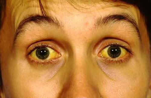 7 dấu hiệu cảnh báo rất có thể bạn đã bị sỏi mật - Ảnh 3.