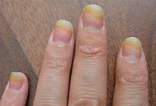 Thường xuyên sơn và đổi màu móng tay: Đẹp nhưng cũng vô vàn hiểm họa - Ảnh 2.