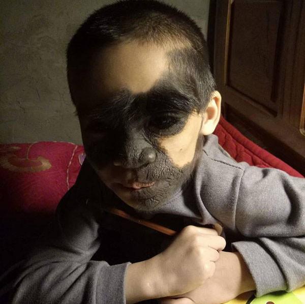 Xót thương bé trai 6 tuổi bị nổi u khắp mặt tựa người rừng từ khi mới chào đời - Ảnh 1.