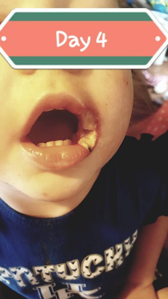 Bé gái 19 tháng tuổi bị phỏng điện suýt mất cả đôi môi vì thói quen vứt sạc điện thoại lung tung của bố mẹ - Ảnh 3.