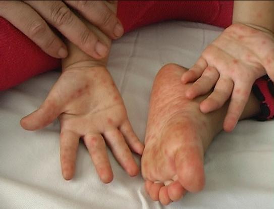 Bệnh tay chân miệng vào mùa, các bậc cha mẹ nhất định phải biết điều này để phòng bệnh cho con - Ảnh 1.