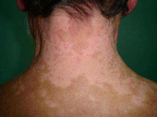 Xuất hiện những chấm trắng trên da như này, đừng chủ quan vì có thể là dấu hiệu của bệnh nguy hiểm - Ảnh 6.