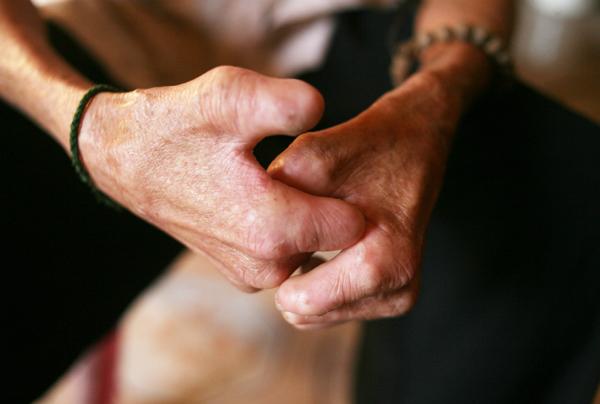 Cuộc sống côi cút của 10 cụ già trong trại phong đã bỏ hoang nhiều năm ở Hà Nội - Ảnh 5.
