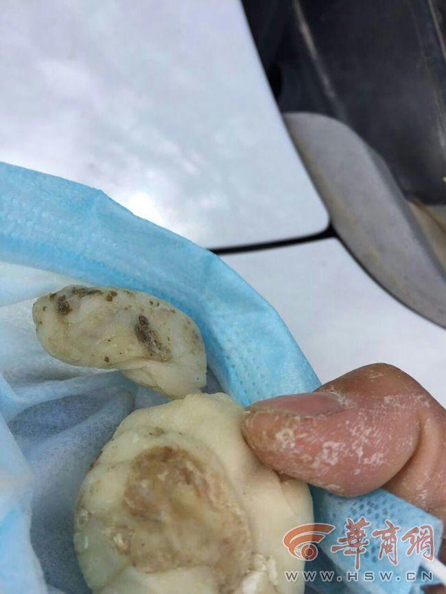 Trường mầm non nấu trứng thối, hạt đậu mốc, gia vị hỏng cho học sinh ăn gây bức xúc - Ảnh 1.