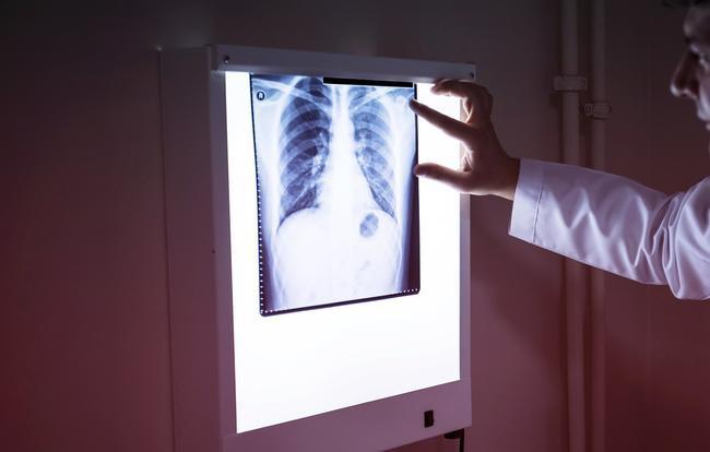 Ung thư phổi rất có thể đang trên đường tìm đến bạn nếu bạn phát hiện ra những dấu hiệu đáng sợ này - Ảnh 1.