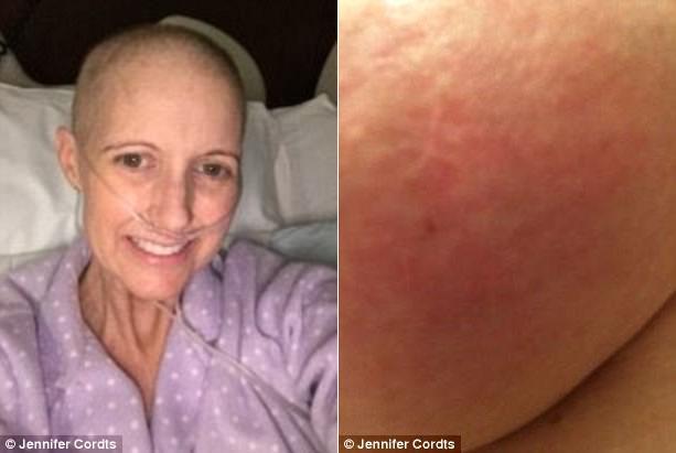 Chỉ bị phát ban trên da, bà mẹ 2 con sốc nặng khi được chẩn đoán mắc bệnh ung thư - Ảnh 1.