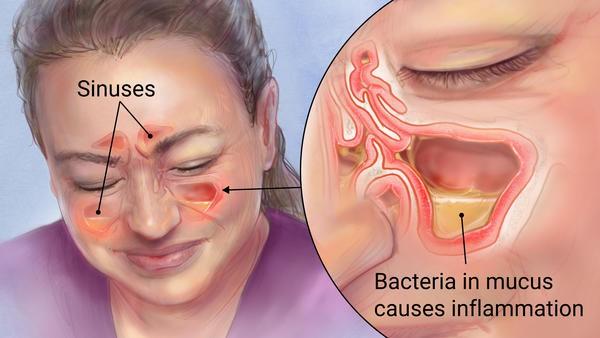 Giảm những triệu chứng khó chịu của viêm xoang ngay tại nhà siêu hiệu quả mà không cần dùng đến kháng sinh: Đây chính là giải pháp! - Ảnh 1.