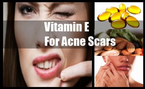 Thực hư chuyện Vitamin E giúp làm mờ vết sẹo - Ảnh 1.