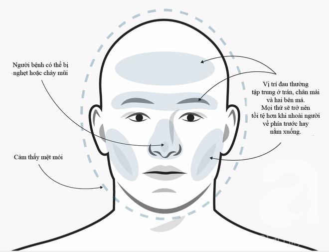 Không phải cơn đau đầu nào cũng giống nhau, phải biết phân biệt để điều trị đúng cách và kịp thời - Ảnh 1.