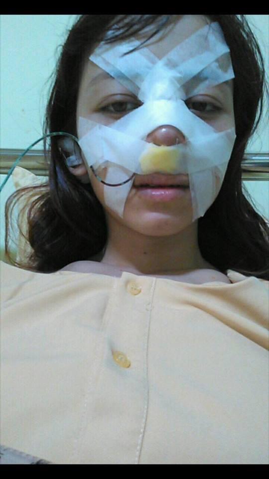 Trải nghiệm kinh hoàng của cô gái trẻ lần đầu nâng mũi sẽ khiến nhiều người nghĩ lại nếu định dao kéo - Ảnh 4.