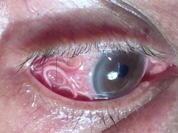 Phát hoảng khi kéo sinh vật dài 15cm ra khỏi mắt người đàn ông, bác sĩ cảnh báo căn bệnh tưởng chừng lãng quên - Ảnh 2.