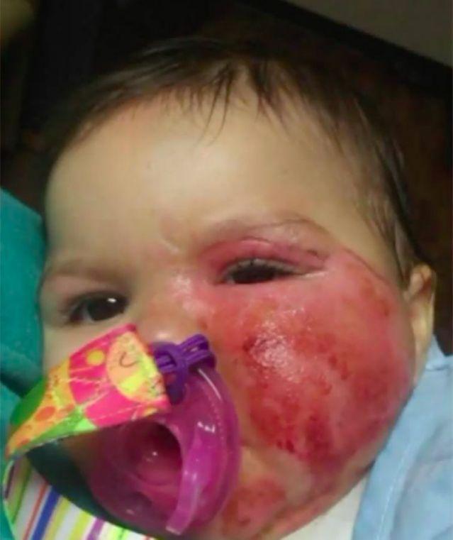 Hình ảnh đáng thương của bé gái này sẽ khiến các mẹ không bao giờ dám để con trong xe tập đi và nấu ăn - Ảnh 2.