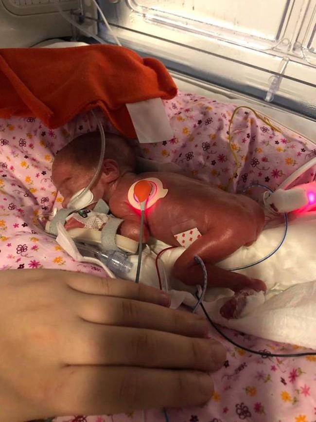 Sinh non ở tuần 27, bé gái tí hon nặng 0,5kg chỉ nhỏ đúng bằng chiếc điện thoại - Ảnh 2.