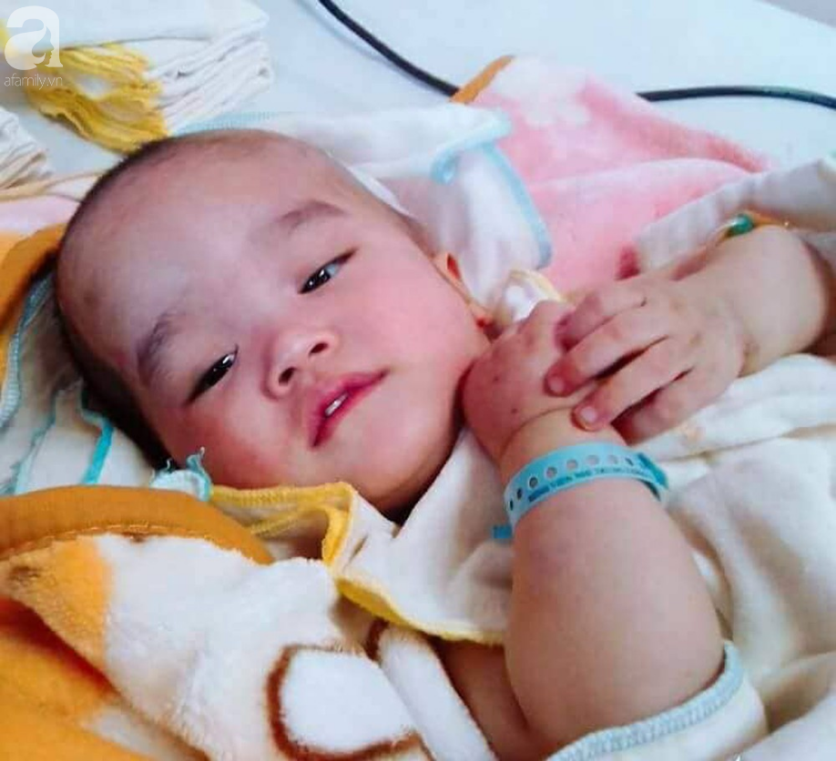 Bé trai 22 tháng tuổi đau đớn trải qua 21 lần phẫu thuật, não và ổ bụng chằng chịt vết mổ  - Ảnh 1.