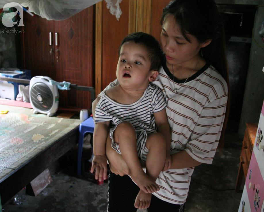Bé trai 22 tháng tuổi đau đớn trải qua 21 lần phẫu thuật, não và ổ bụng chằng chịt vết mổ  - Ảnh 4.