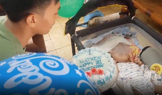 Tự ý uống thuốc hạ sốt trong thai kì, mẹ bầu phải trả giá đắt khi sinh con mắc hội chứng hiếm gặp - Ảnh 1.