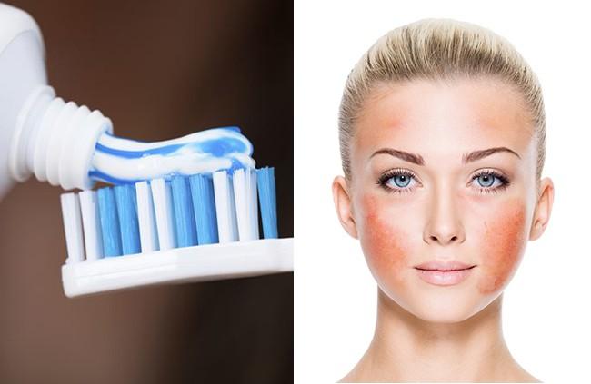 9 nguyên liệu nhiều chị em cứ tưởng an toàn mà lại vô cùng tai hại với da mặt - Ảnh 2.