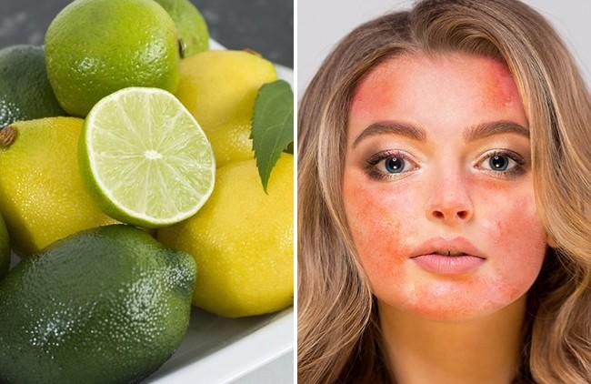 9 nguyên liệu nhiều chị em cứ tưởng an toàn mà lại vô cùng tai hại với da mặt - Ảnh 8.