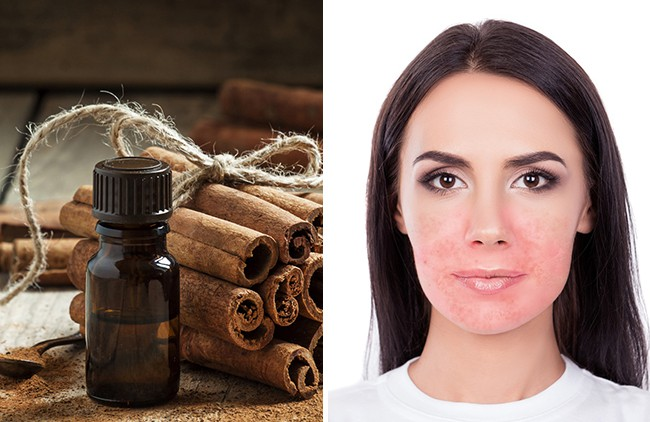 9 nguyên liệu nhiều chị em cứ tưởng an toàn mà lại vô cùng tai hại với da mặt - Ảnh 9.
