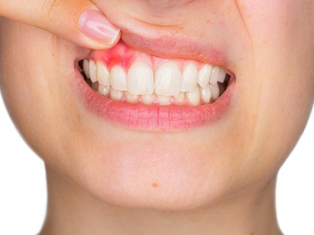 5 dấu hiệu trên khuôn mặt tiết lộ sự thiếu hụt các chất dinh dưỡng mà bạn chỉ cần nhìn vào gương là thấy - Ảnh 6.