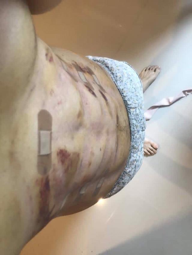 Trào lưu phẫu thuật thẩm mỹ mới: Body 6 múi sexy không cần phải tập cũng có! - Ảnh 8.