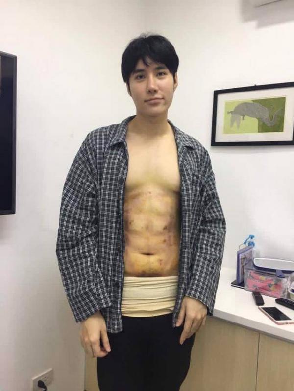 Trào lưu phẫu thuật thẩm mỹ mới: Body 6 múi sexy không cần phải tập cũng có! - Ảnh 9.