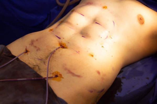 Trào lưu phẫu thuật thẩm mỹ mới: Body 6 múi sexy không cần phải tập cũng có! - Ảnh 3.