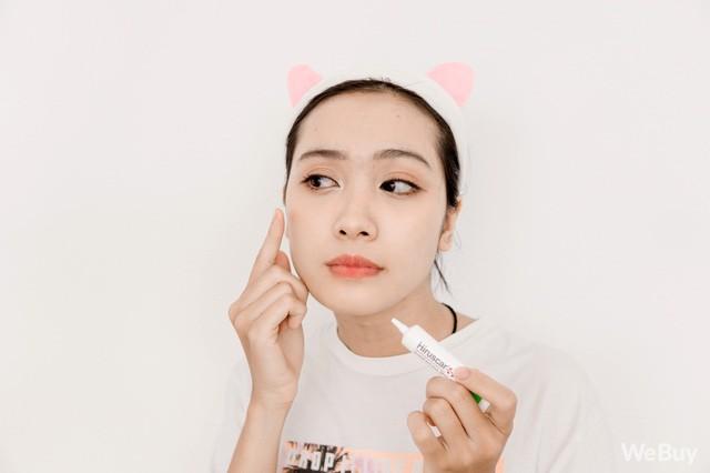 5 bước chăm sóc da nhất định phải có giúp bạn diệt mụn, trừ thâm hiệu quả - Ảnh 4.