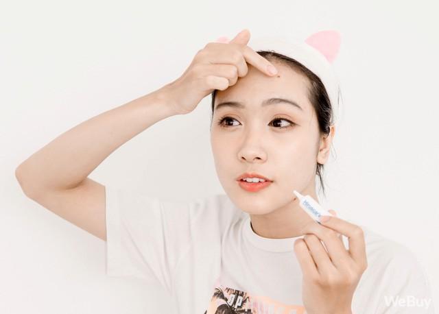 5 bước chăm sóc da nhất định phải có giúp bạn diệt mụn, trừ thâm hiệu quả - Ảnh 6.