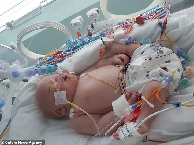 Siêu âm thai phát hiện bất thường, con chào đời mẹ sốc hơn khi thấy hai chân con xoay ngược từ trước ra sau - Ảnh 1.