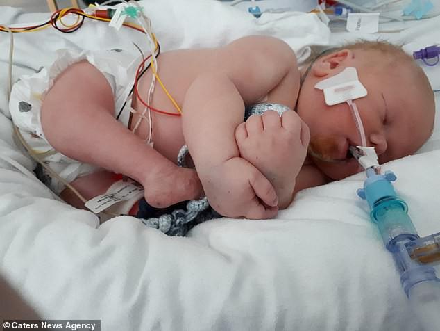 Siêu âm thai phát hiện bất thường, con chào đời mẹ sốc hơn khi thấy hai chân con xoay ngược từ trước ra sau - Ảnh 3.