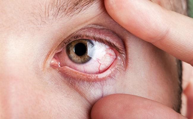 Đừng xem thường tình trạng khô mắt vì biến chứng rất nghiêm trọng và đây là cách để nhận biết - Ảnh 2.