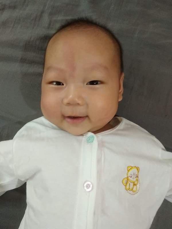 Hành trình giữ con kì diệu của mẹ Hà Nội khi thai nhi bị tràn dịch màng phổi, màng bụng và phù thai - Ảnh 5.