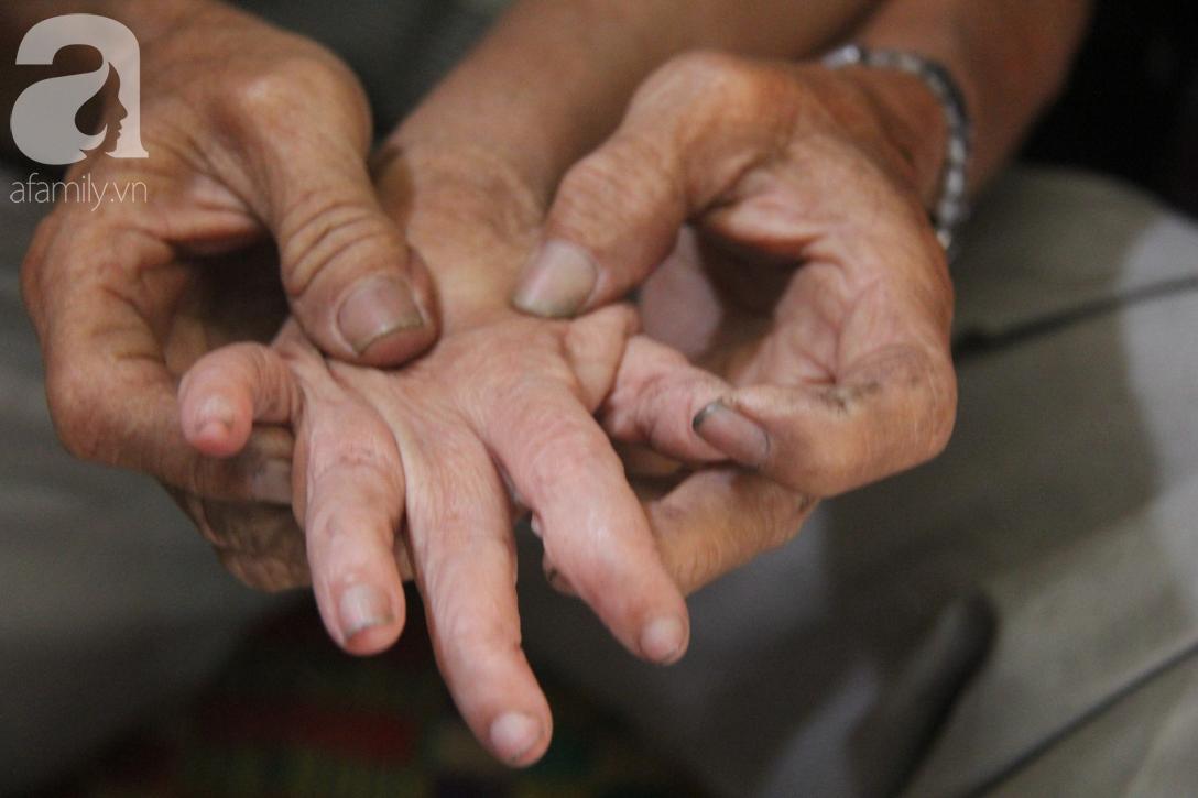 Rớt nước mắt cảnh cha già có đến 6 người con nhưng cuối đời phải chăm con gái bệnh tật không tiền chữa - Ảnh 13.