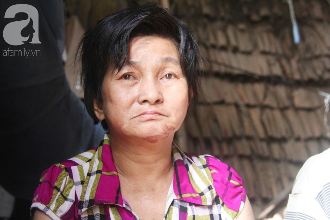 Rớt nước mắt cảnh cha già có đến 6 người con nhưng cuối đời phải chăm con gái bệnh tật không tiền chữa - Ảnh 3.
