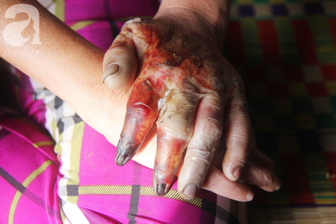 Rớt nước mắt cảnh cha già có đến 6 người con nhưng cuối đời phải chăm con gái bệnh tật không tiền chữa - Ảnh 4.