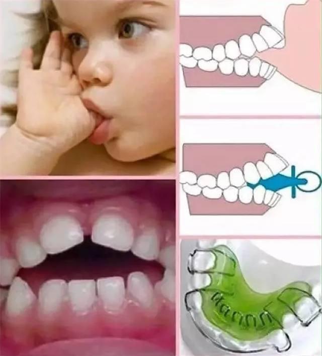 3 thói quen phổ biến ở trẻ mà các mẹ cần loại bỏ ngay nếu không muốn gây hại đến xương hàm và thẩm mỹ sau này của con - Ảnh 3.