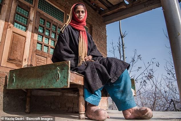 Bàn chân sưng to gấp 3 lần vì nhiễm giun sán khiến cô gái 21 tuổi có khả năng mất cả tương lai - Ảnh 1.