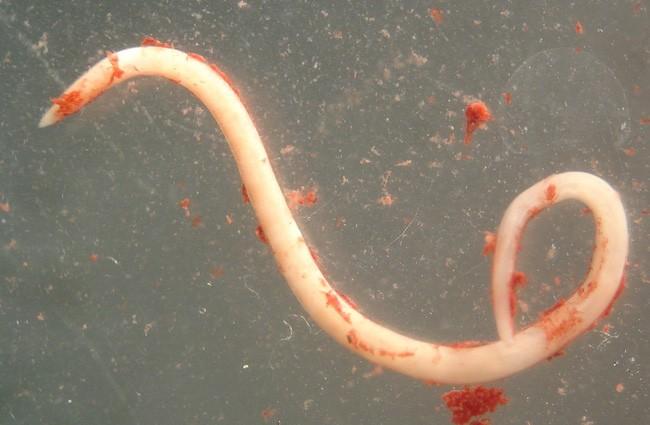 Cô gái 28 tuổi ăn hải sản và đau bụng dữ dội, bác sĩ phát hiện có ký sinh trùng trong dạ dày - Ảnh 4.
