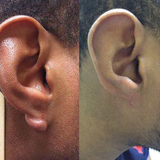 Nếu bỗng nhiên thấy sưng hoặc nổi cục ở cổ và tai, đừng bao giờ bỏ qua những khả năng này - Ảnh 6.