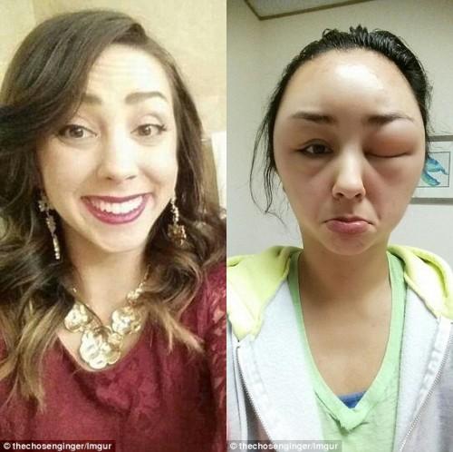 Có chị em biến dạng đầu, xơ gan chỉ vì nhuộm tóc, chuyên gia đưa ra nguyên tắc sống còn tránh gặp họa - Ảnh 3.