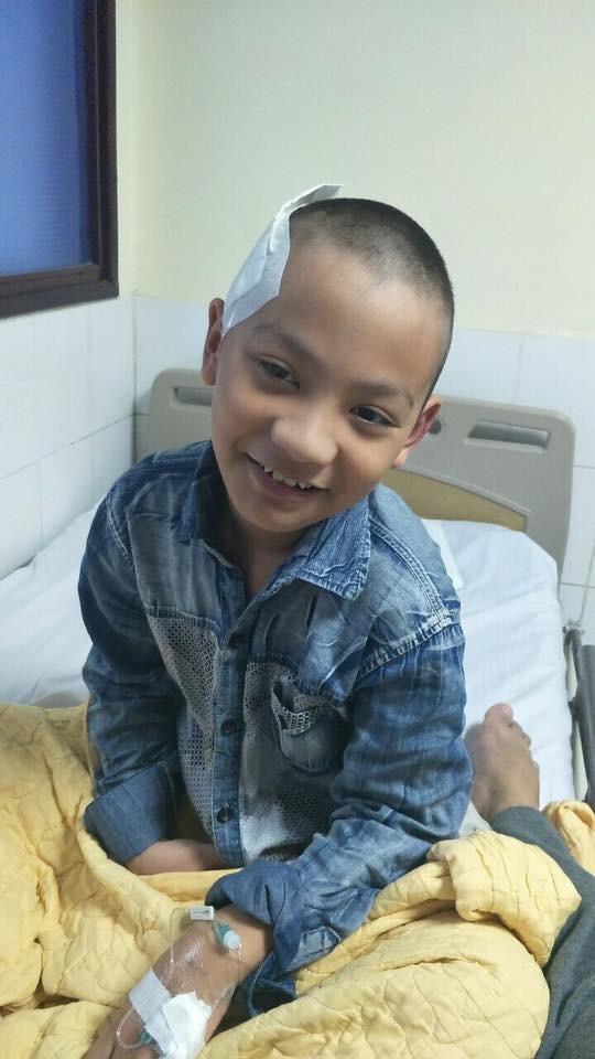 Cậu bé 9 tuổi đột nhiên bị xuất huyết não vì lý do ai cũng có thể mắc và lời cảnh báo từ người mẹ - Ảnh 7.