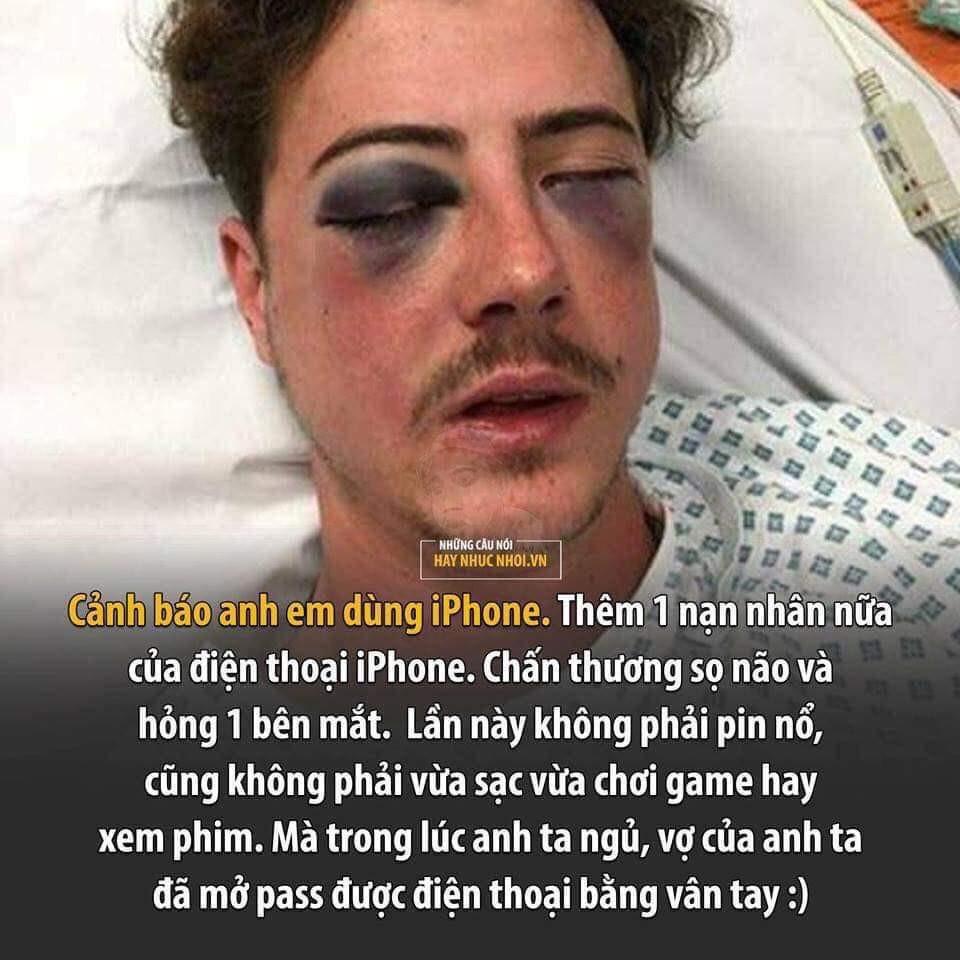 Cấp báo: Thêm 1 nạn nhân dùng Iphone bị thâm mắt nặng khi ngủ vì