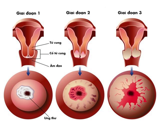 Căn bệnh cứ 2 phút khiến 1 người tử vong: Không quan hệ tình dục sớm là cách phòng bệnh - Ảnh 1.